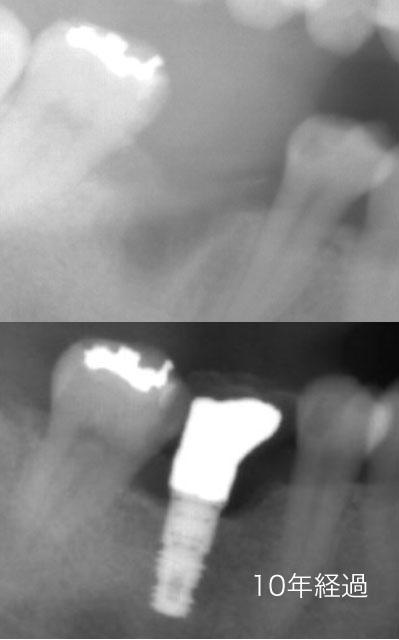 予防のためのインプラント 健全歯を削らないために
