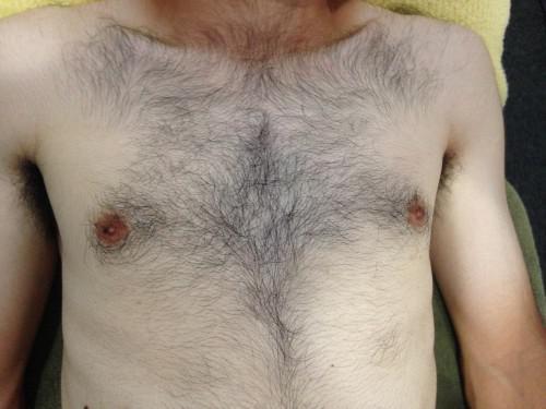 胸毛腹毛脱毛 ビフォーアフター