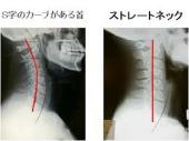 ストレートネックによる肩こりと鍼灸治療