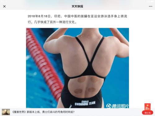 2018年アジア大会の水泳選手の吸い玉治療