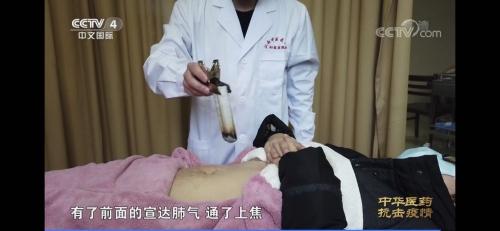 新型コロナウイルス肺炎のお灸治療法紹介