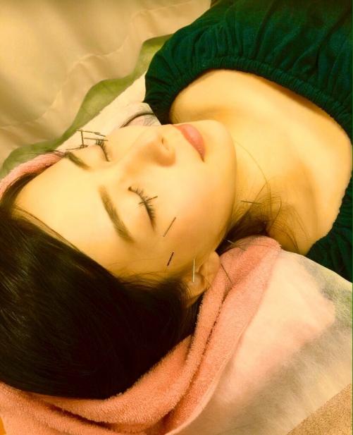 大人気/美容鍼+フェイシャルマッサージ/オリンピア鍼灸整骨院