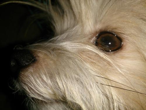 緑内障.ブドウ膜炎.いろんな目の病気があります。